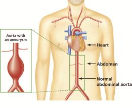 Abdominal Aortic Aneurysm (AAA) Aorta illustration